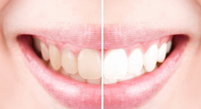 Help, my teeth are changing colour! What to do if certain foods stain your teeth